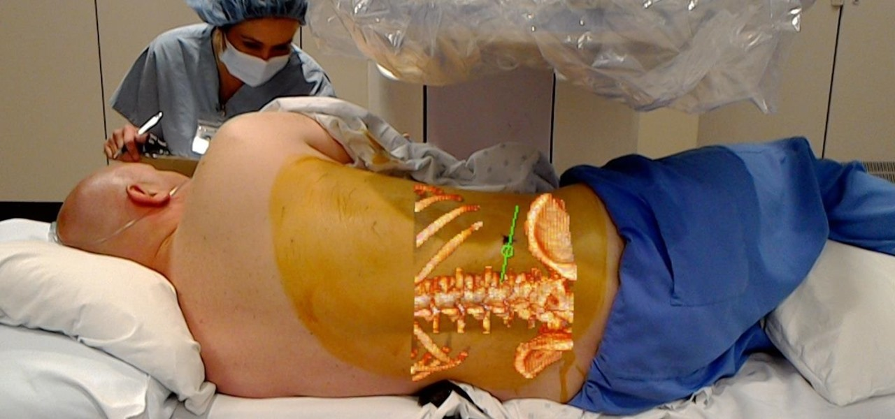 HoloLens Assists in Live Surgery