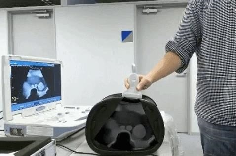 If You've Ever Wanted X-Ray Vision, Check Out This Combination of Augmented Reality & Ultrasound