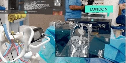 Doctors Team Up to Use HoloLens & VR App to Perform Live Surgery from UK, India & US